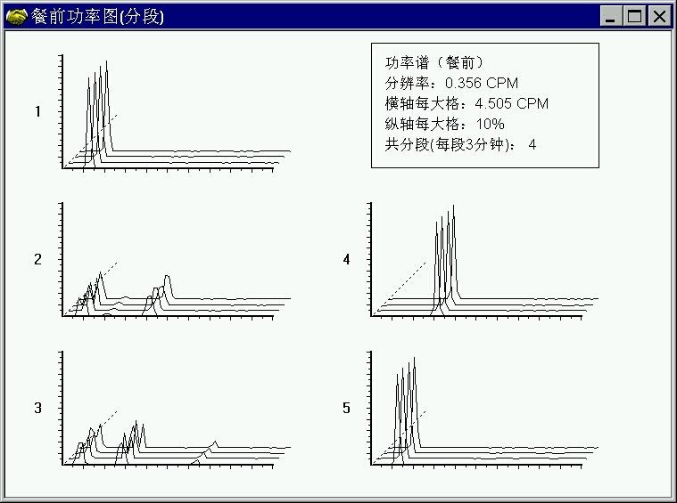功率谱图.jpg